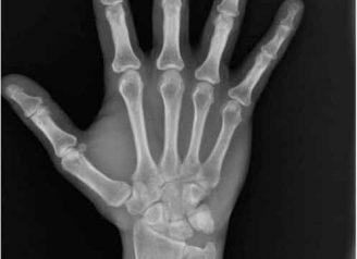 radiografia- carpal