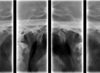 radiografia de atm