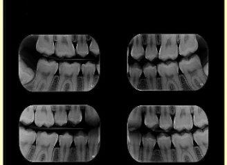 radiografias interproximais