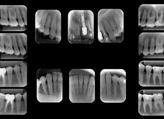 radiografias-periapicais-boca-toda