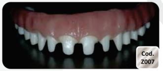 Barra Protocolo em Zircônia com Anatomia Dentaria