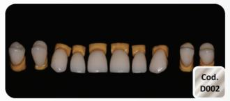 Facetas/Onlay/Inlay/ Fragmento em Dissilacato de Lítio